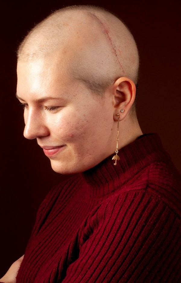 A woman in a red roll-neck sweater and earrings. She has no hair and a thin scar stretching from behind her ear and over her head.