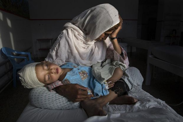 March 29, 2016, Kabul, Afghanistan – Najiba holds her nephew Shabir, who was injured in a bomb blast that killed his sister. The bomb exploded in a relatively peaceful part of Kabul while Shabir's mother was walking the children to school.