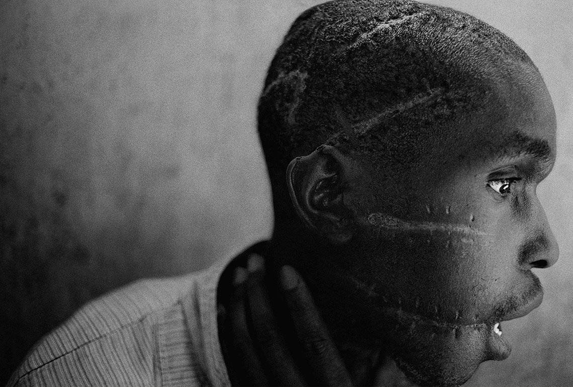 A young Hutu man's profile reveals several long, deep scars across his scalp and face in Rwanda.