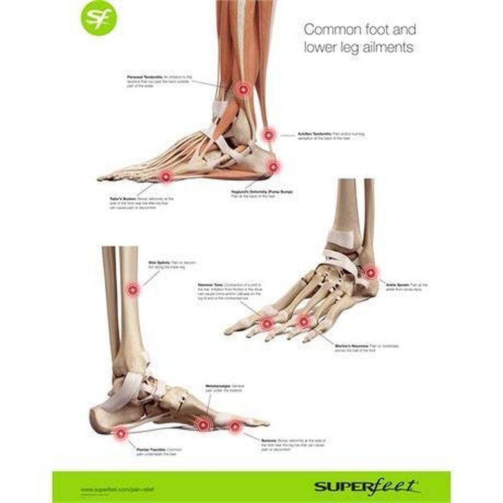 Superfeet Women's Trail Superfeet Comfort Max Blazer Footbeds - Purple